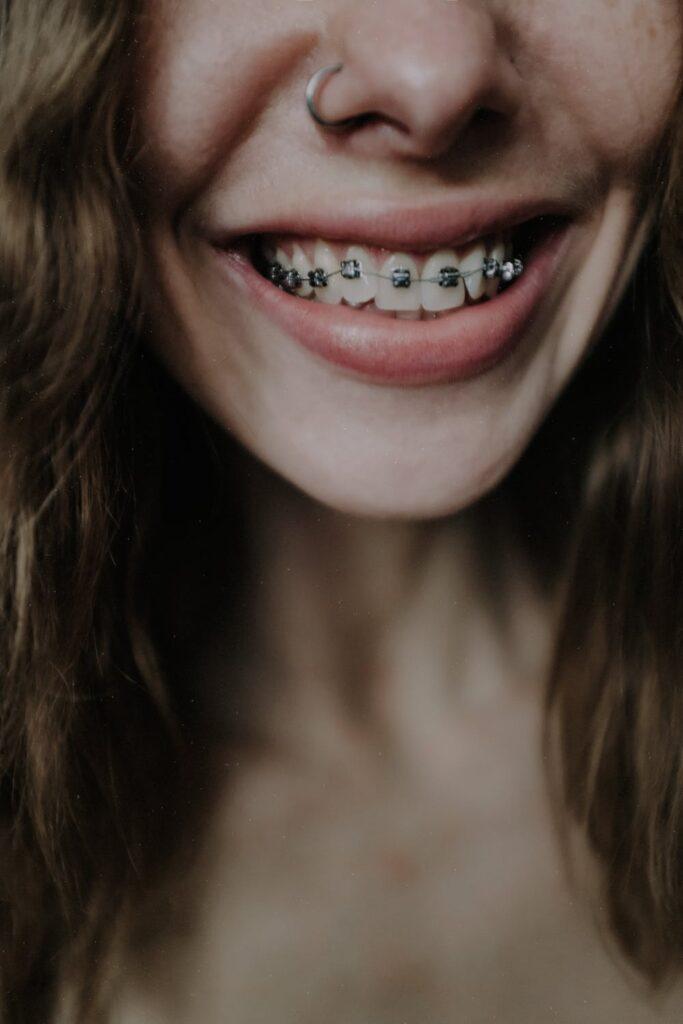 Jak wybielić zęby z aparatem ortodontycznym?